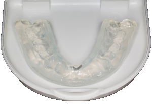 Orthodontics In Colorado Springs Keystone Dental Center